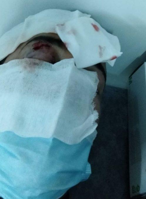 В Стамбуле избили туркменских активистов